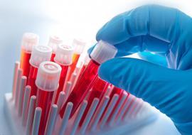 В Курганской области выявили новый случай заражения COVID-19